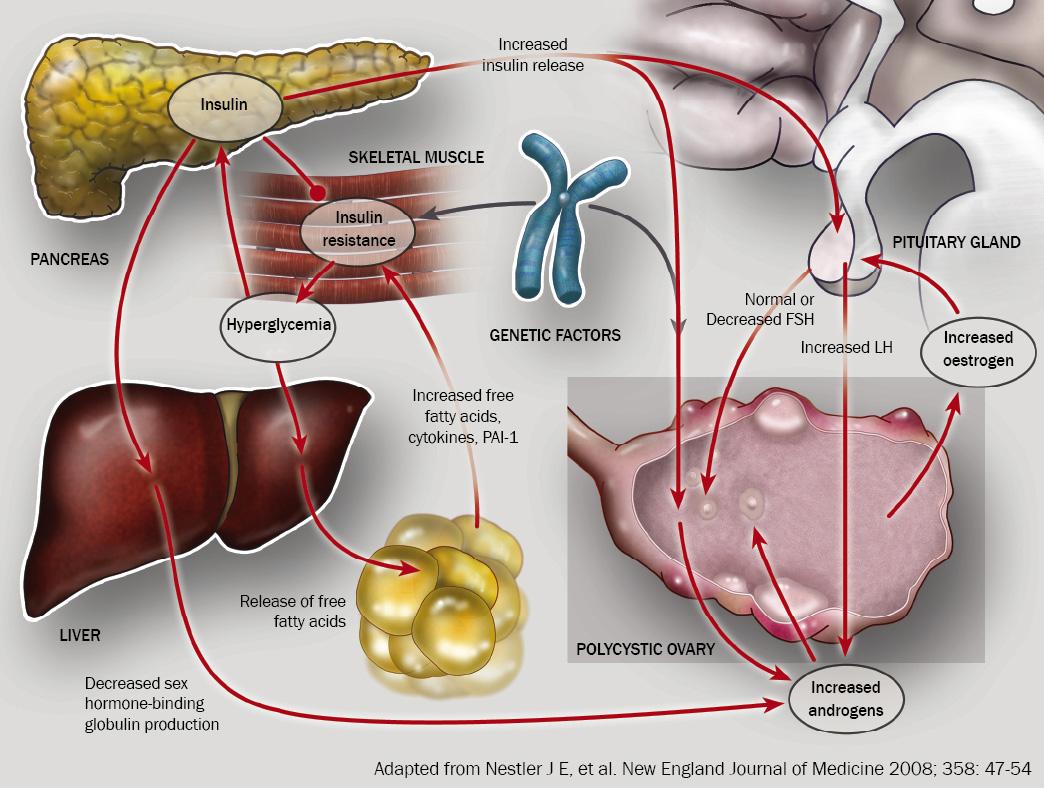 Синдром поликистозных яичников секс